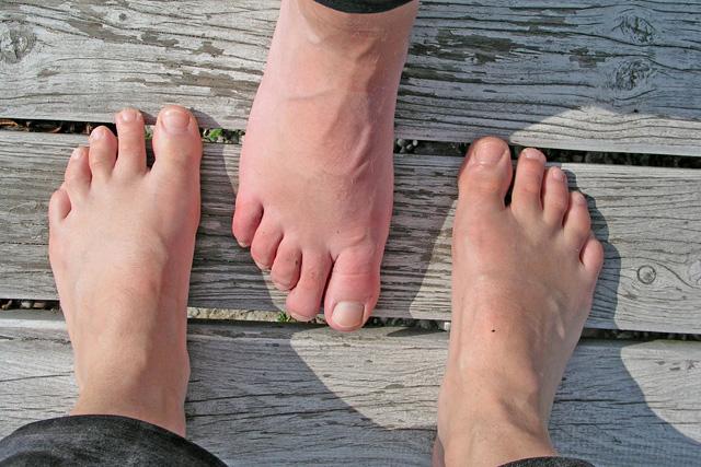 nagy lábujj ízület kezelése a leghatékonyabb gyógyszer az ágyéki csontritkulás kezelésére