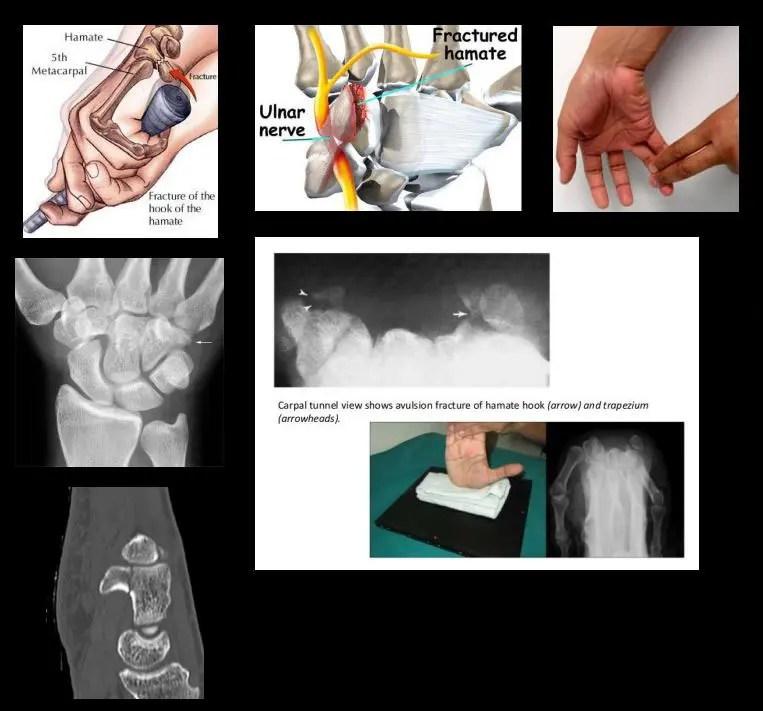 Csuklófájdalom - sérülés és túlterhelés