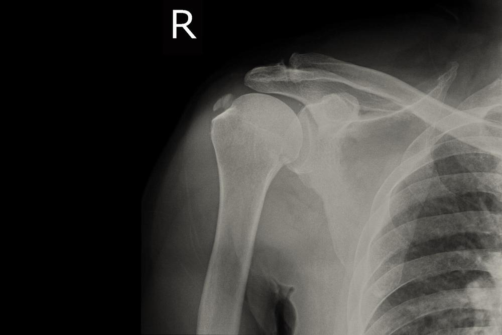 váll fájdalom jele arthros kezelés argo-val