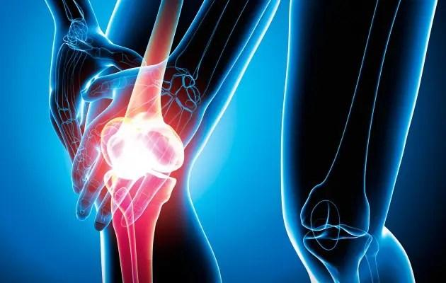 Térd meniszkusz: okok, károsodás tünetei és kezelés - Osteochondrosis -