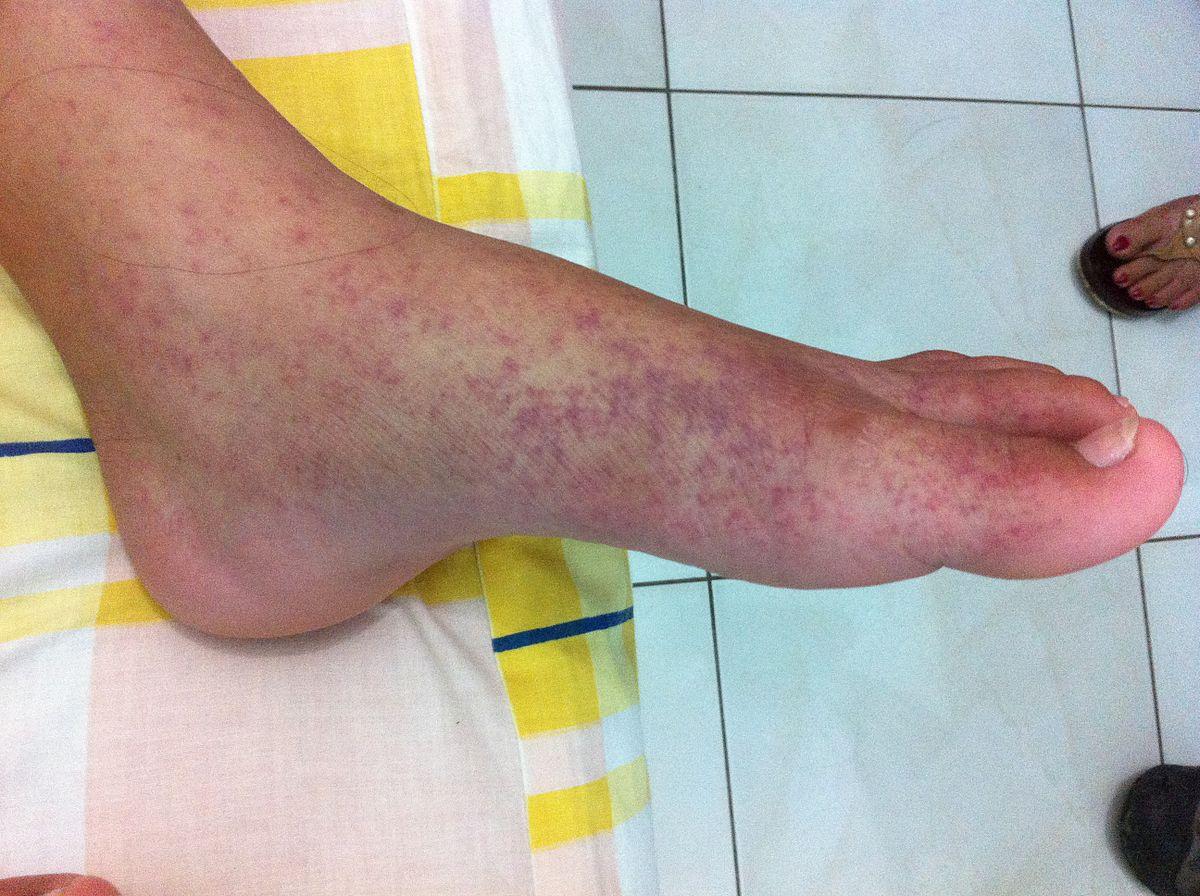 mit kell venni a lábak ízületeinek fájdalma miatt