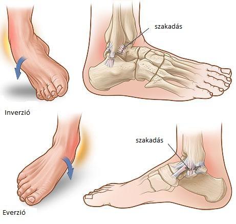 fájdalom a boka futás után térd sérüléssel kapcsolatos cikkek