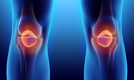 Mi az arthrosis az első fokú boka ízület? - Kezelés