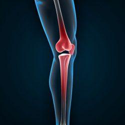ízületi fájdalom parkensonnal mi a kenőcs az ízületi fájdalmak esetén