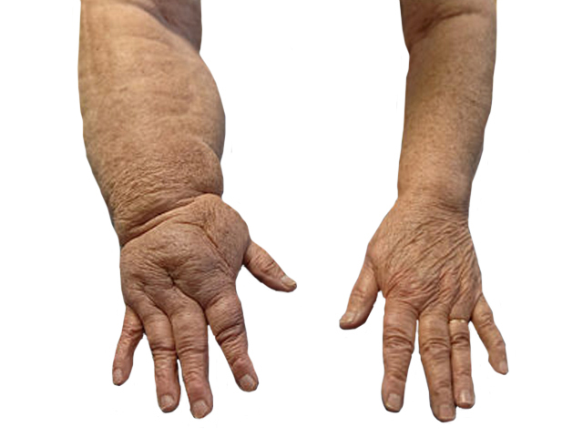 hogyan kell kezelni a duzzadt ízületeket a lábakon