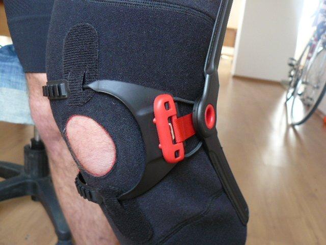 enyhítse a térdfájdalmat az artrózissal