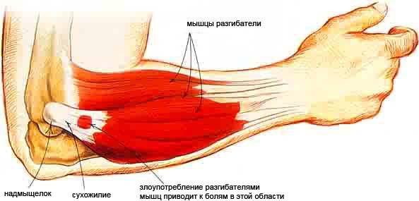 az első metacarpalis phalangeális ízületi gyulladás