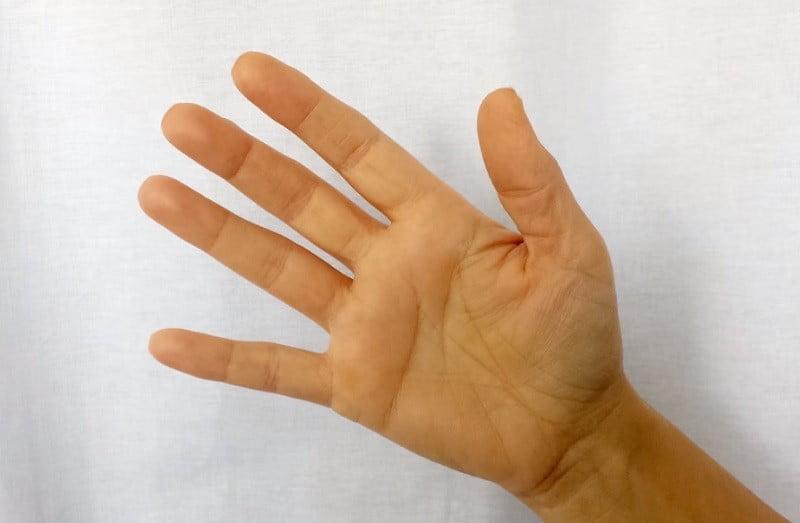 a kéz zsibbadása