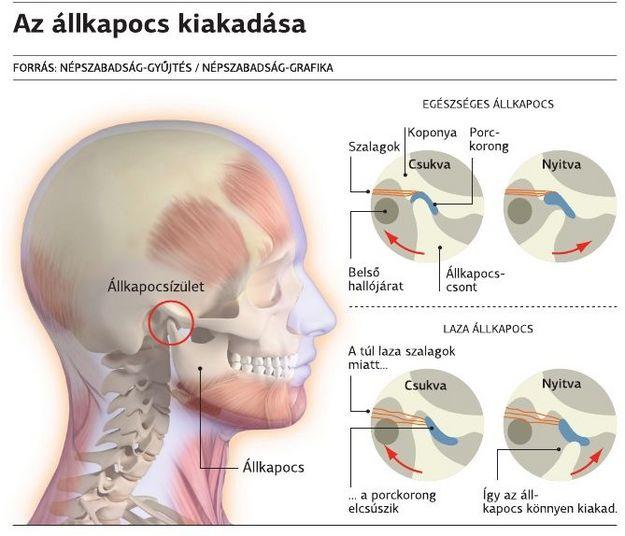 Artritisz (az ízületek gyulladásos megbetegedése)