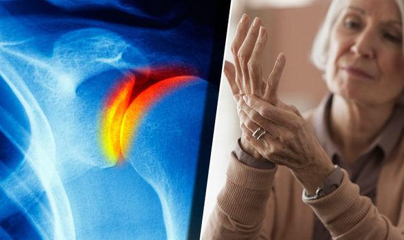 glükózamin készítmény leírása arthrosis tb ízületi kezelés