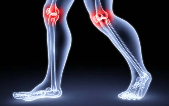 térd szinovitisz deformáló artrózisa táplálkozás és az artrózis kezelése