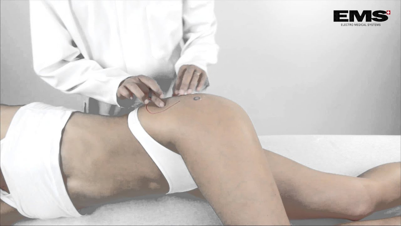 Csípőízületi gyulladás kezelése lökéshullámmal