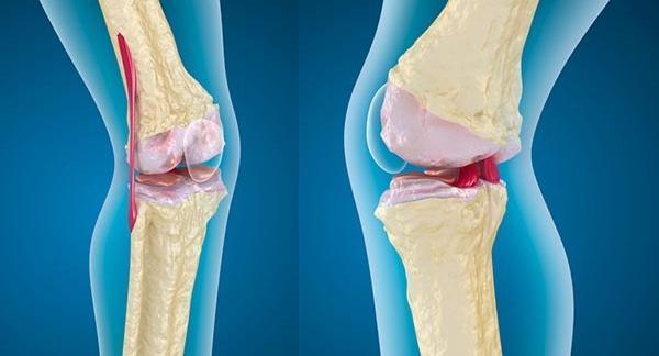 ízületi gyulladás a második lábujj kezelésénél térdízület ízületi gyulladás gyógyszerei