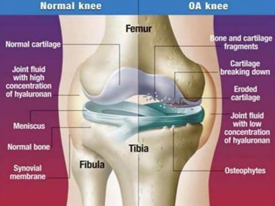 ki kezeli a könyökízület szinovitist hatékony kenőcs a lábak ízületeinek fájdalmára