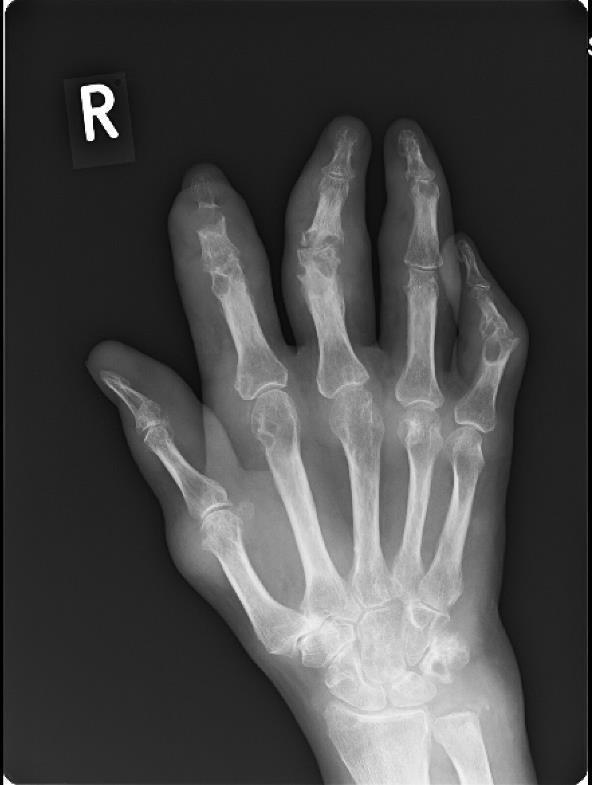 az ujjak ízületeinek ízületi gyulladása kezelésére kondroitin és glükozamin kenőcsök 911