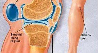 fájdalom a térdben és a csípőízületben