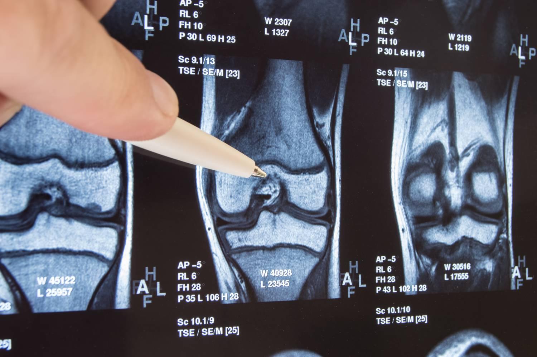 gyógyszer váll artrózis gyógyítja és erősíti az ízületeket