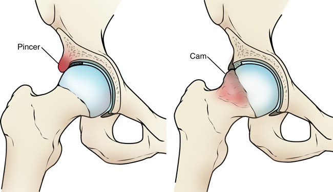ebből a csípőízület fájdalma