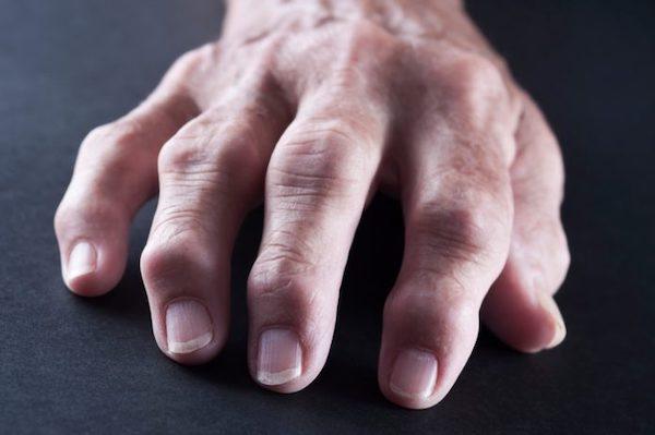 a lábujjak és a kéz ízületi gyulladása csípőfájás, amely kiterjed a csípőre