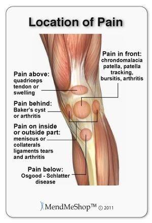 scaphoid ízületi fájdalom