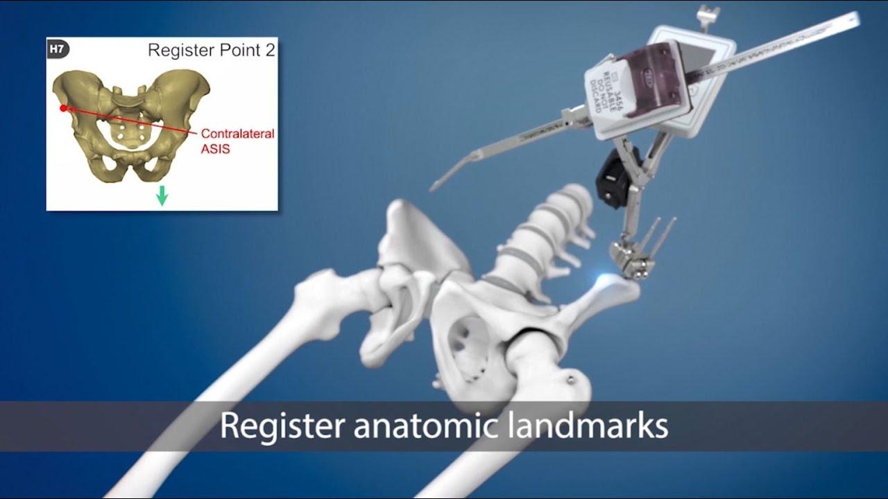 műtő térdízület költsége ízületi arthrosis a kezek