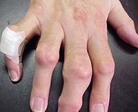 a térdízület ligamentumszakadásának kezelése