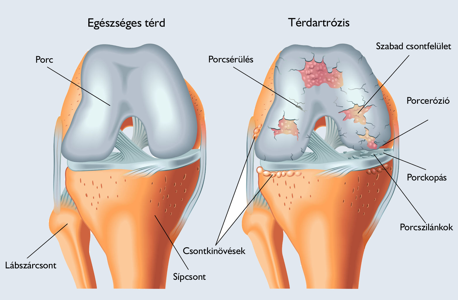 medence a csípő artrózisához