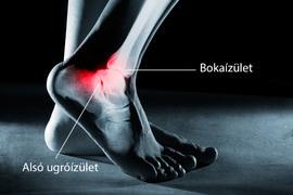 a bokaízület subluxációjának és artrózisának kezelése ízületi teraflex kenőcs áttekintés
