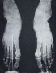 A lábközépcsontok törése