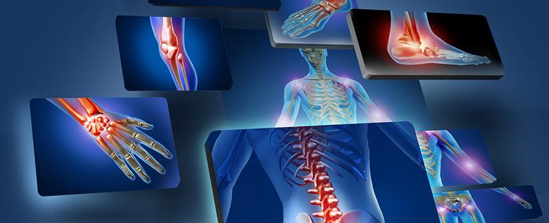 az ízületek fájnak a futball után atlanto-axiális ízületi arthrosis kezelés