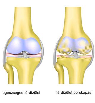 artrózis kezelés magyarország