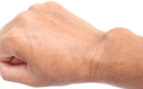 ízületi gyulladás csuklóízület gyulladás ízületi fájdalom limfóma
