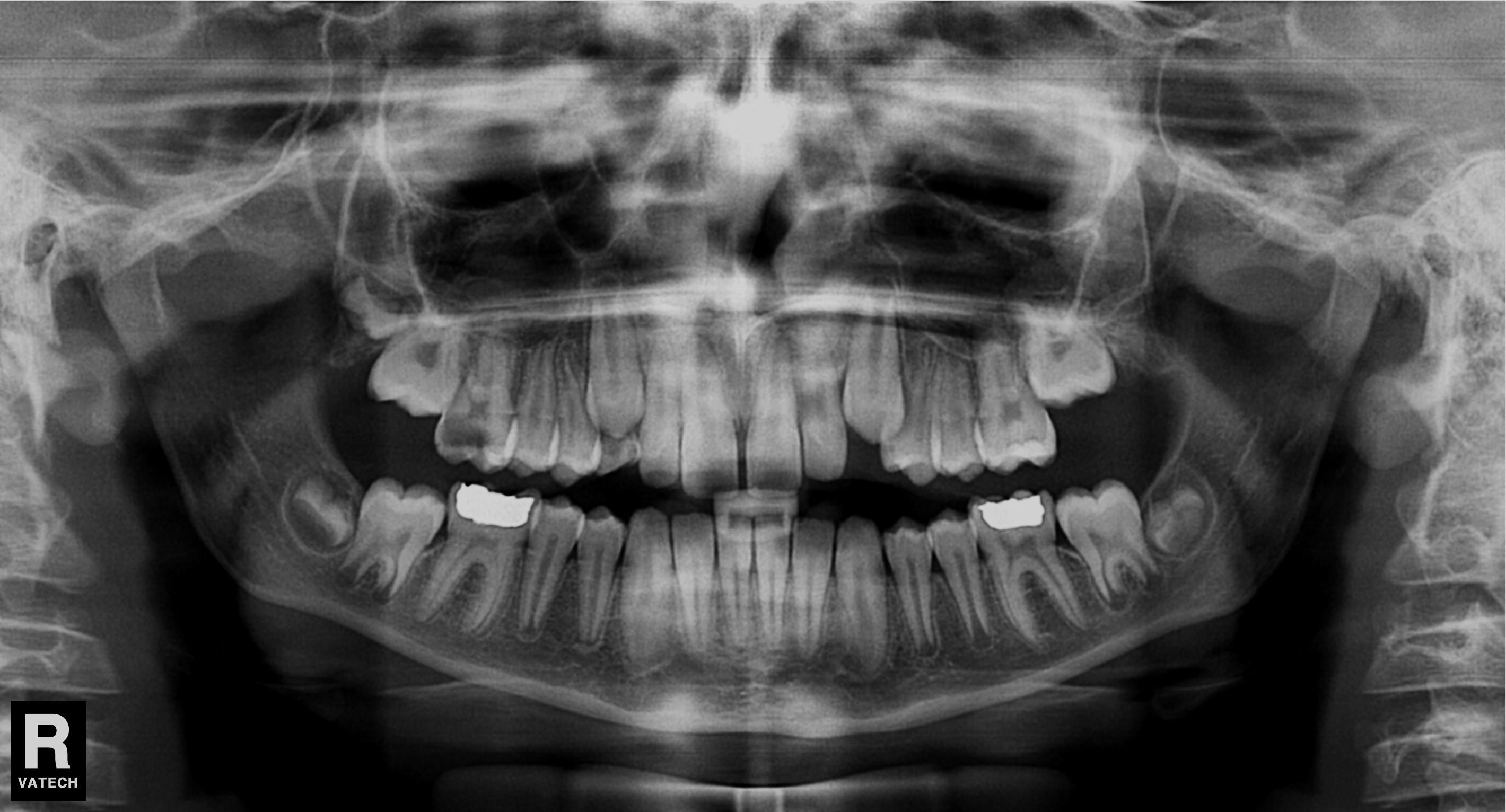 ízületi fájdalom a fogszuvasodás miatt