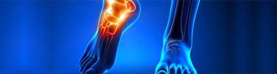 hogyan kezeljük a lábízület-rándulást koriander ízületi kezelés