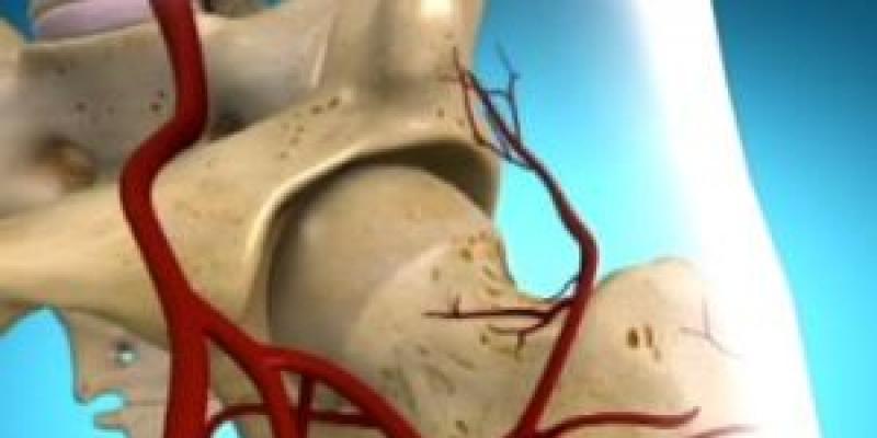 Mi az a ostoochondropátia, és hogyan kezeljük? - Ekcéma