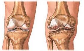 új a térd deformáló artrózisának kezelésében