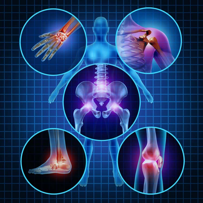 térdízületi kezelés artrózisának diagnosztizálása izomízületek az egész testben