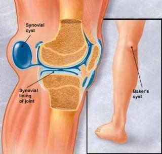 lábfájdalom a csípőben, mint hogy kezeljék a térdízület ízületi gyulladása 1. stádiumú kezelés