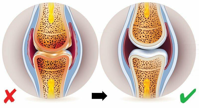 Ízületi gyulladások, fájdalmak, reuma   TermészetGyógyász Magazin