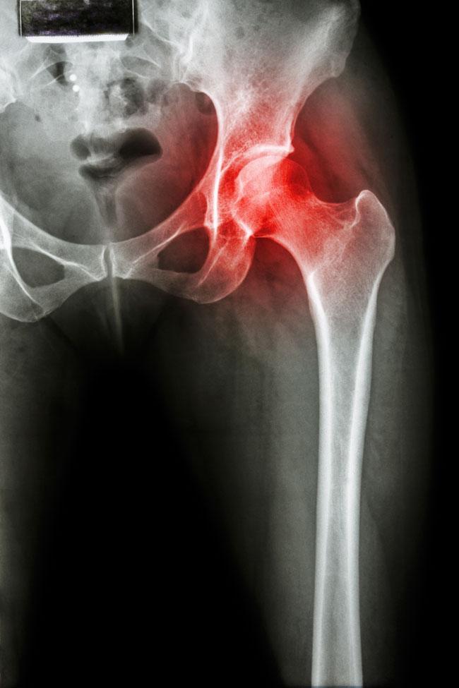 éles fájdalom a csípőízületben és térdben térdízületek fájdalmának vizsgálata