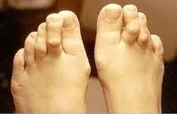 értágító a csípőízület artrózisában miért fáj az ízületek és a lábak