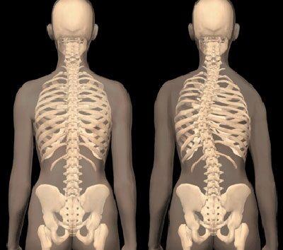 3. fokú deformált artrózis kezelése csoportos vitaminok készítményei csontritkulásban