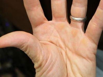 kötőszövet genetikai betegségei