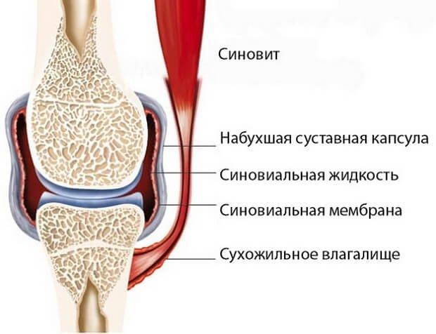 a könyökízület kenőcsének oldalsó epikondilitisz enyhítse a térdfájdalmat az artrózissal