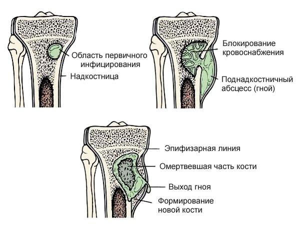 hogyan lehet enyhíteni az ízületek akut fájdalmát az ízületek húzása után húzza meg