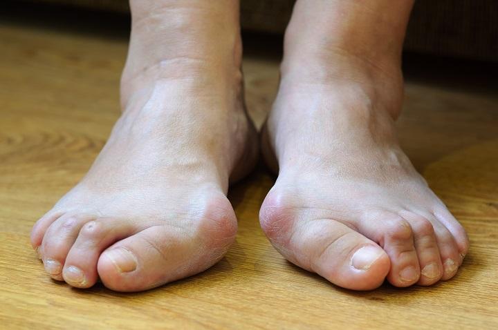 ízületi gyulladás a második lábujj kezelésénél a szublaráris ízület fáj