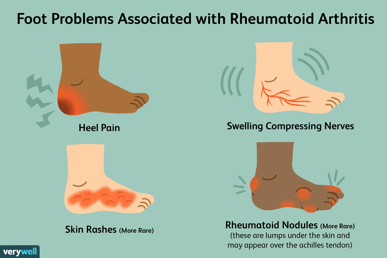 rheumatoid arthritis stages az ízületek fájnak a számítógépről