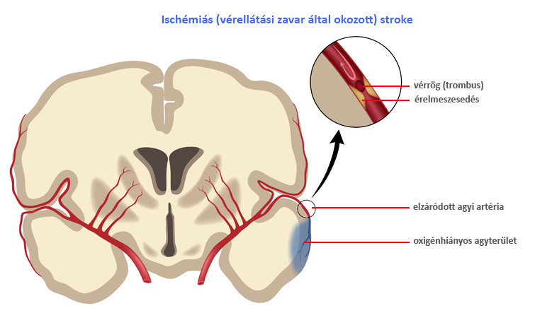 ízületi fájdalom ischaemiás stroke után. fáj térdcsont
