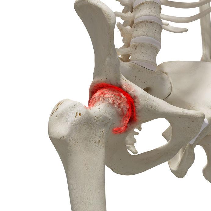 a csukló rheumatoid arthritis tünetei