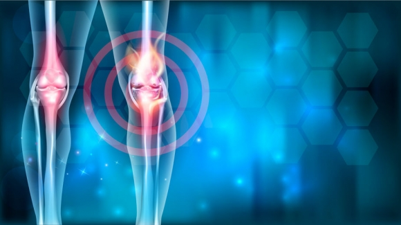 Rosszindulatú támasztószöveti daganatok (felnõttkori rosszindulatú csont- és lágyrészszarkómák)